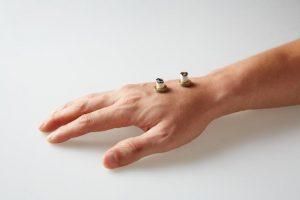 Moxa adhésif placé sur la main, une des méthodes utilisées