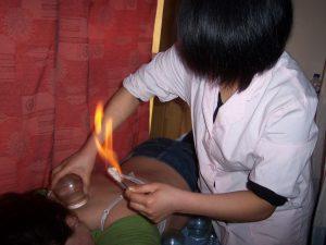 """Ventouses en verre appelé """" par le feu """" parmi les méthodes utilisées"""
