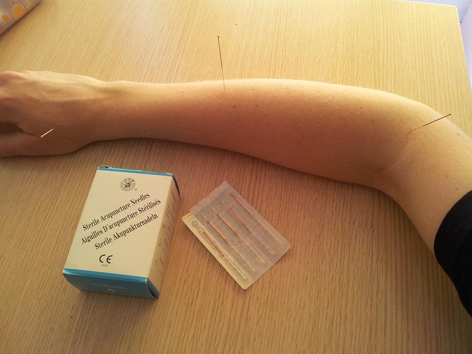 Insertion d'aiguilles sur le bras droit dans le cadre d'une séance d'acupuncture