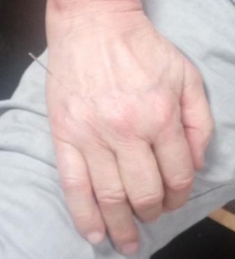 Thérapie d'une entorse sur la main opposée